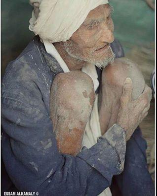 """عجوز تآكل جسدة من البرد والهوان..""""حديث الصورة """""""